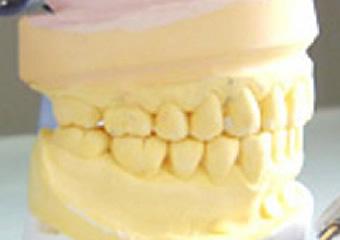 STEP3.歯の模型を使っての診査